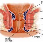 chữa bệnh trĩ nội, trĩ ngoại