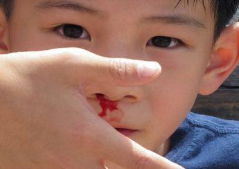 đổ máu mũi
