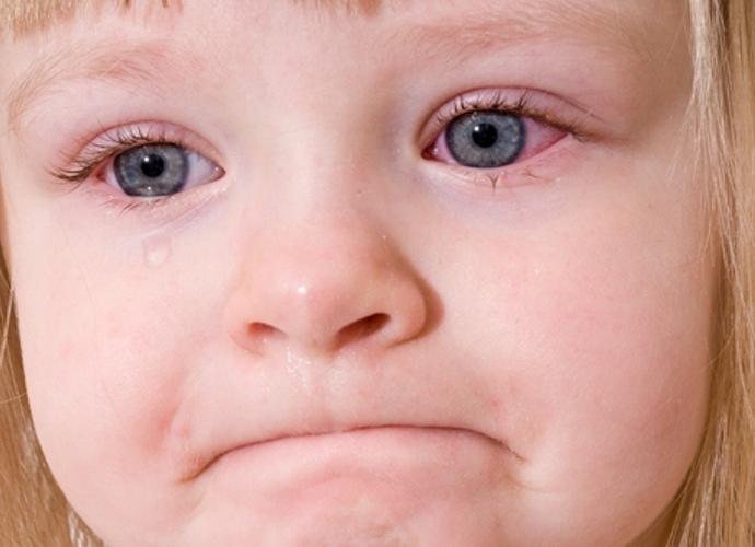 đau mắt đỏ 1 chứng bệnh về mắt