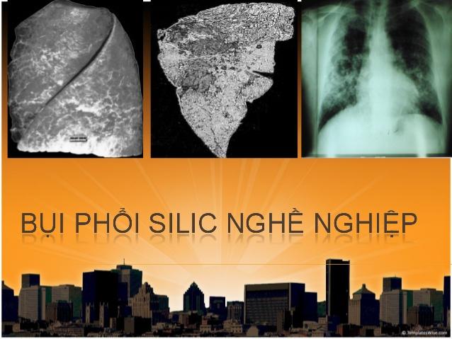 bụi phổi silic
