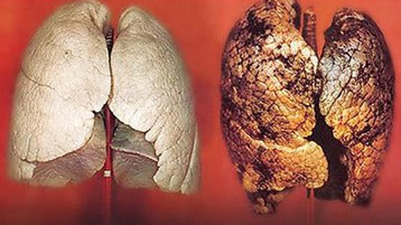 tìm hiểu bệnh ung thư phổi