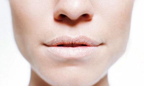 môi khô