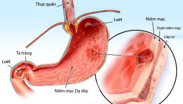 chữa viêm loét dạ dày tá tràng